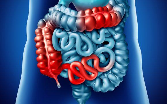 Recomandari alimentare Rectocolita si boala Crohn
