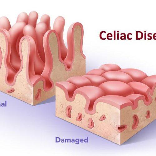 Boala Celică